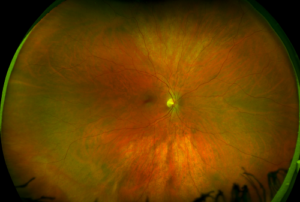 healthy-retina-california